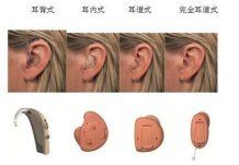 助听器佩戴效果图