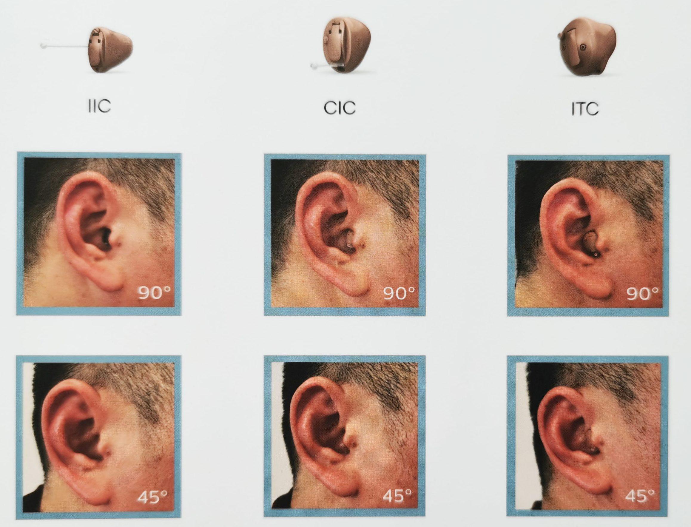 听途ET定制式助听器